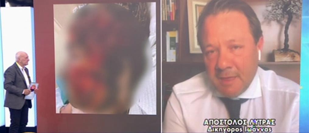 Λύτρας: Η επίθεση με βιτριόλι, η χαρτορίχτρα και το δηλητήριο (βίντεο)