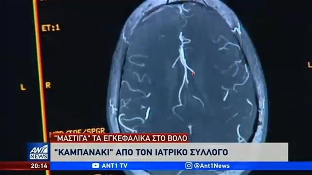 «Μάστιγα» τα εγκεφαλικά στον Βόλο: πώς «συνδέονται» με την ατμοσφαιρική ρύπανση και το… αλκοόλ
