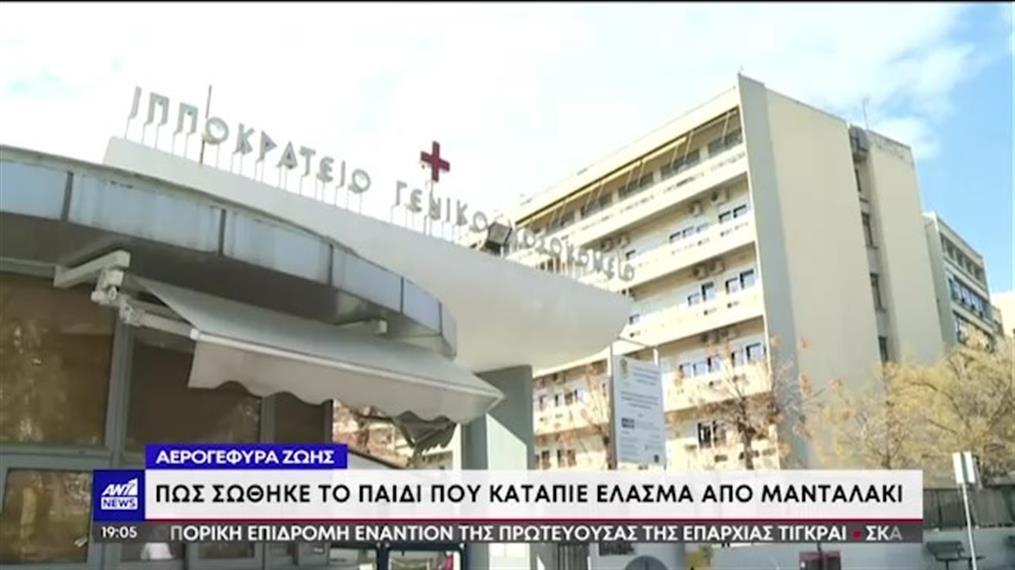 Θεσσαλονίκη: επέμβαση σωτηρίας για το παιδί που κατάπιε μανταλάκι!