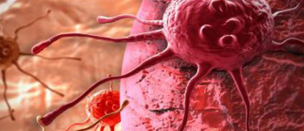 Ραδιοεμβολισμός: νέα θεραπευτική αντιμετώπιση του καρκίνου του Ήπατος