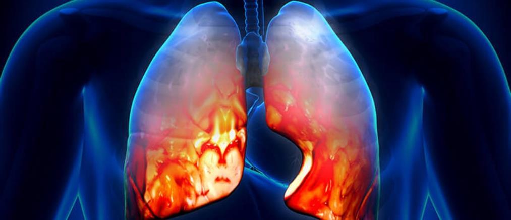 Οι λοιμώξεις του αναπνευστικού συστήματος