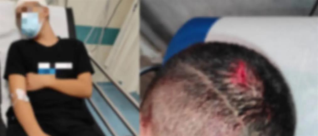 Αλιβέρι: Άγριος ξυλοδαρμός ανήλικου από αθλητή των πολεμικών τεχνών