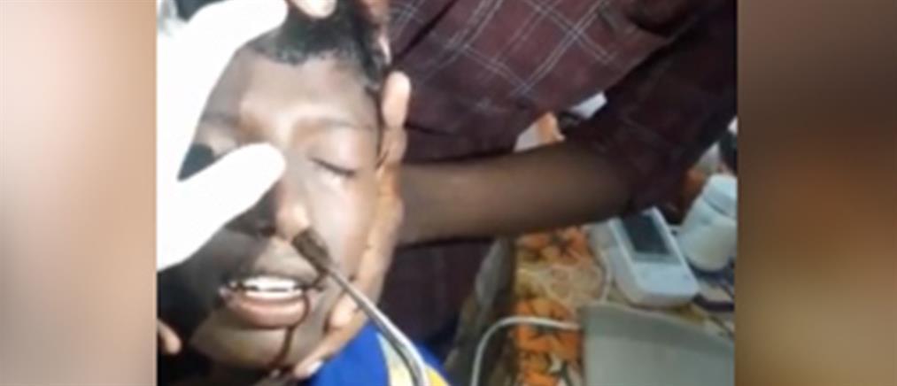 Έβγαλαν ψάρι από την μύτη 13χρονου (βίντεο)