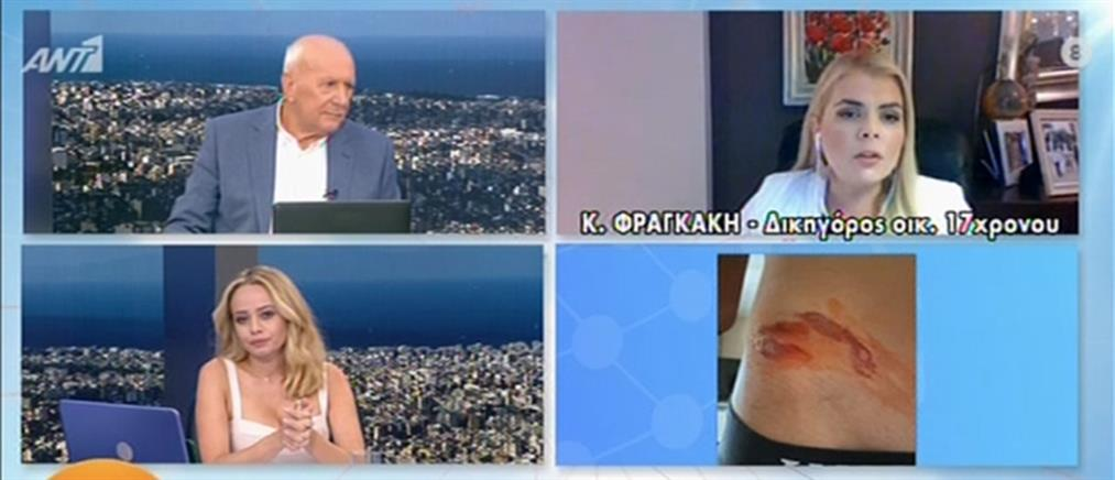 Αποκλειστικό ΑΝΤ1: Συγκλονίζει ο 17χρονος που έπεσε θύμα ξυλοδαρμού από ανήλικους (βίντεο)