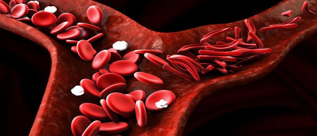 Εγκρίθηκε η γονιδιακή θεραπεία της μεσογειακής αναιμίας