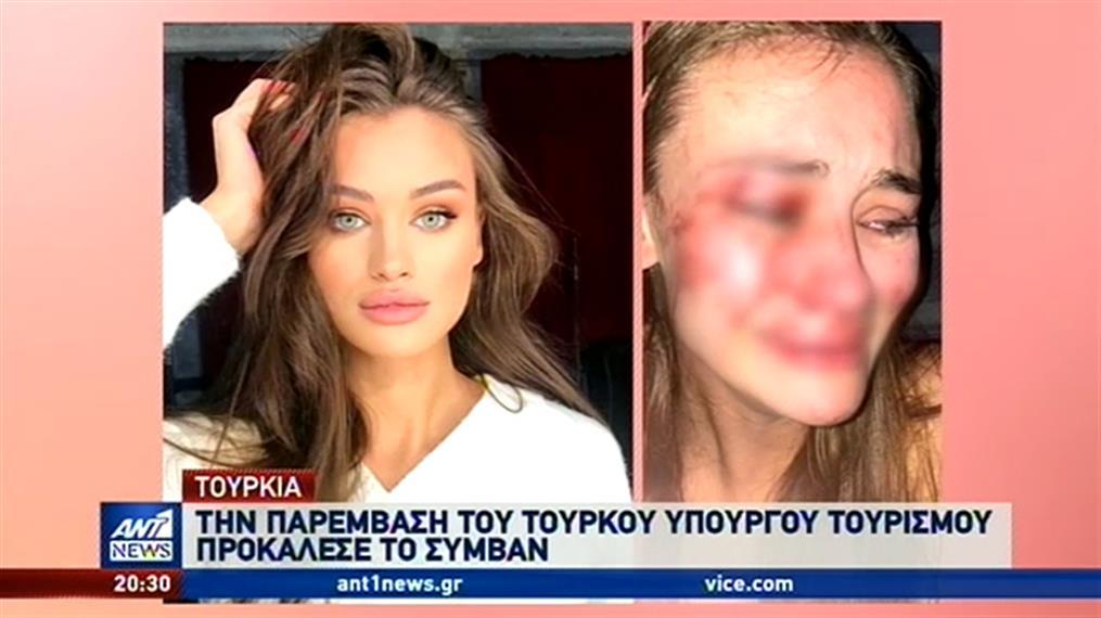 Τουρκία: Θύμα άγριου ξυλοδαρμού καταγγέλλει ότι έπεσε top model μέσα σε κλαμπ