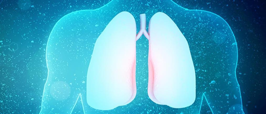 Καταμήνιος Πνευμοθώρακας: τύπος πνευμοθώρακα που προσβάλλει αποκλειστικά γυναίκες αναπαραγωγικής ηλικίας