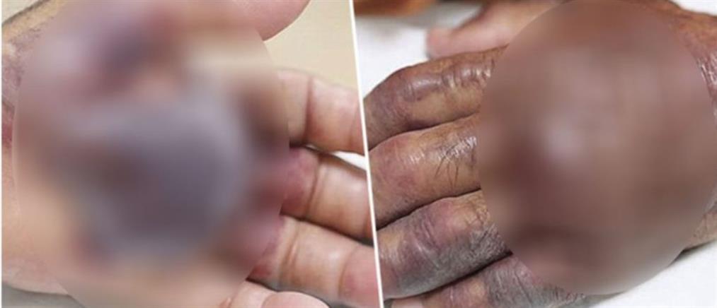 Σκληρές εικόνες: Τον ακρωτηρίασαν μετά από μόλυνση από ωμά θαλασσινά