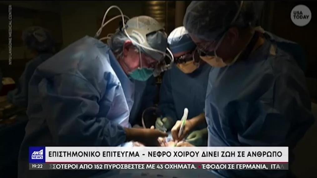Μεταμόσχευση νεφρού από γουρούνι σε άνθρωπο