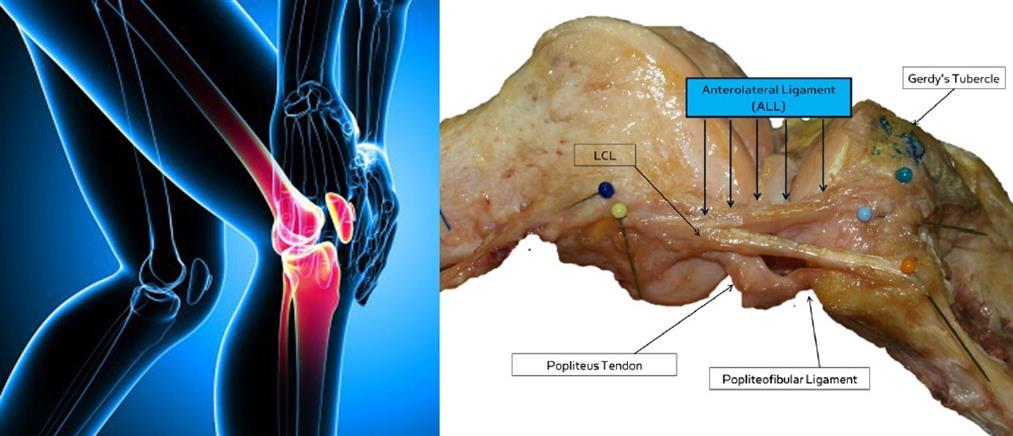 Νέος σύνδεσμος στο ανθρώπινο γόνατο