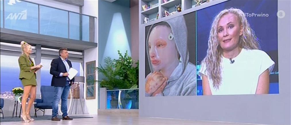 Επίθεση με βιτριόλι - Ιωάννα Παλιοσπύρου: Θα μπω στο δικαστήριο με το κεφάλι ψηλά (βίντεο)