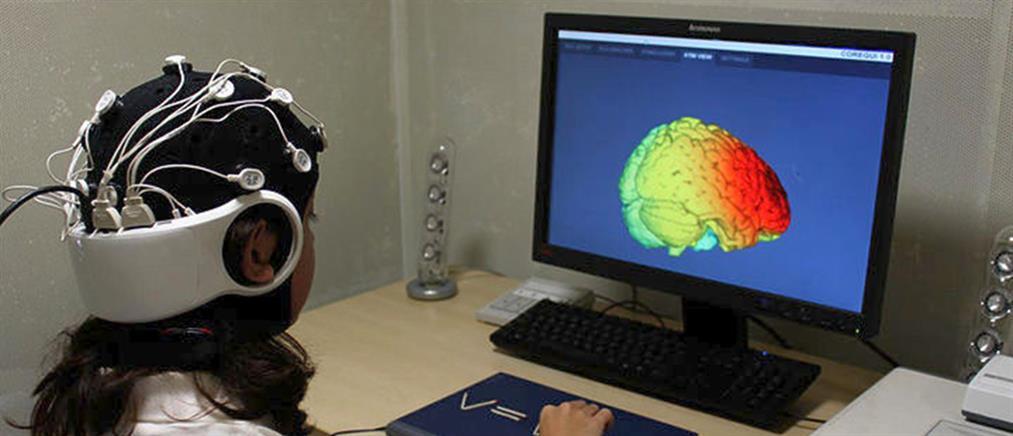 """Ο πρώτος """"βηματοδότης"""" εγκεφάλου σε ασθενείς με Αλτσχάιμερ δοκιμάστηκε επιτυχώς"""