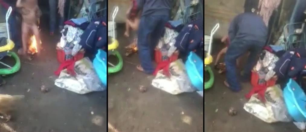 Βίντεο-σοκ! Πατριός καίει τα γεννητικά όργανα 3χρονου