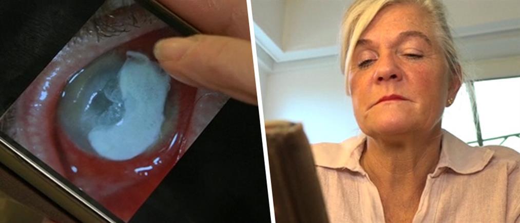 Φρίκη: Έχασε το μάτι της από τον φακό επαφής! (βίντεο)