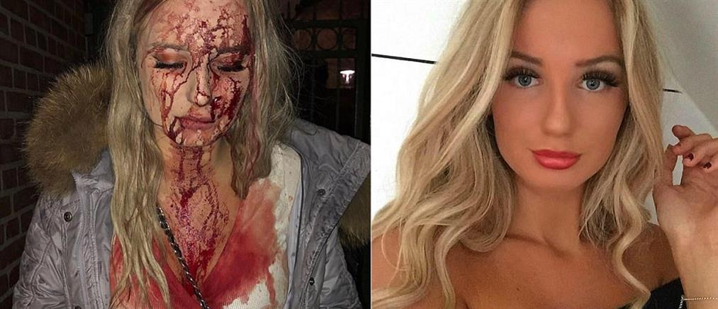Έσπασε μπουκάλι στο κεφάλι της επειδή αντέδρασε στο… χούφτωμα! (φωτο)