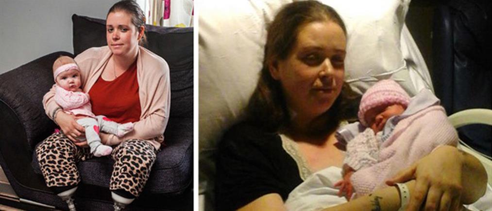 Μετά τη γέννηση του 8ου παιδιού της, έμαθε για τον ακρωτηριασμό της