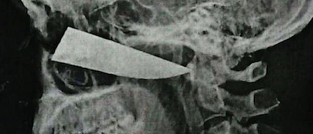 Πήγε στο γιατρό με πονοκέφαλο και είχε μαχαίρι στο κεφάλι του.. (εικόνες)