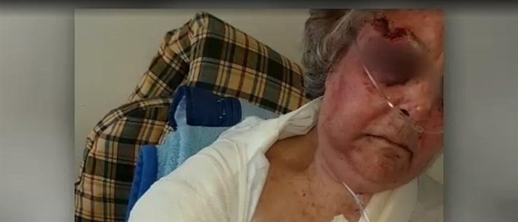 Συγκλονίζει ηλικιωμένη που έπεσε θύμα ληστείας στο Παγκράτι (βίντεο)