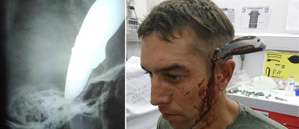 Πήγε στο νοσοκομείο με ένα μαχαίρι… καρφωμένο στο κεφάλι του (εικόνες)