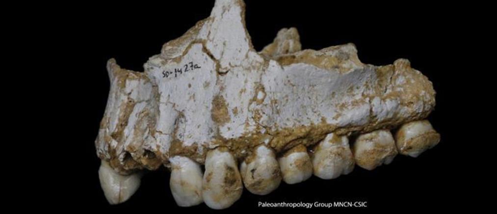 Η Οδοντιατρική στους προϊστορικούς χρόνους - Οι Νεάντερταλ ήταν οδοντίατροι;