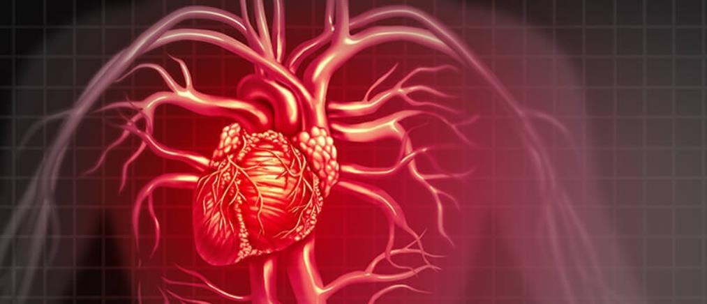 Καρδιαγγειακή απεικόνιση