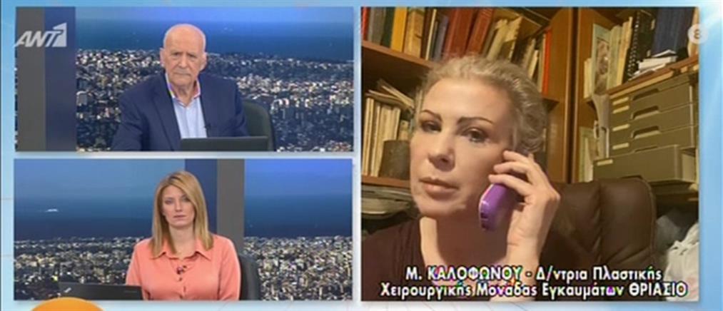 Καλοφώνου για επίθεση με βιτριόλι: το αριστερό μάτι της 34χρονης έχει καεί (βίντεο)
