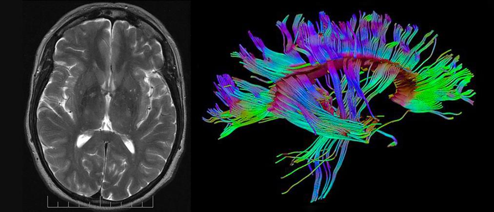 Επιστημονικό επίτευγμα: διατήρησαν ζωντανούς εγκεφάλους χωρίς σώμα για 36 ώρες!