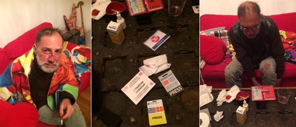 Επίθεση στα Εξάρχεια καταγγέλλει φωτορεπόρτερ (εικόνες)