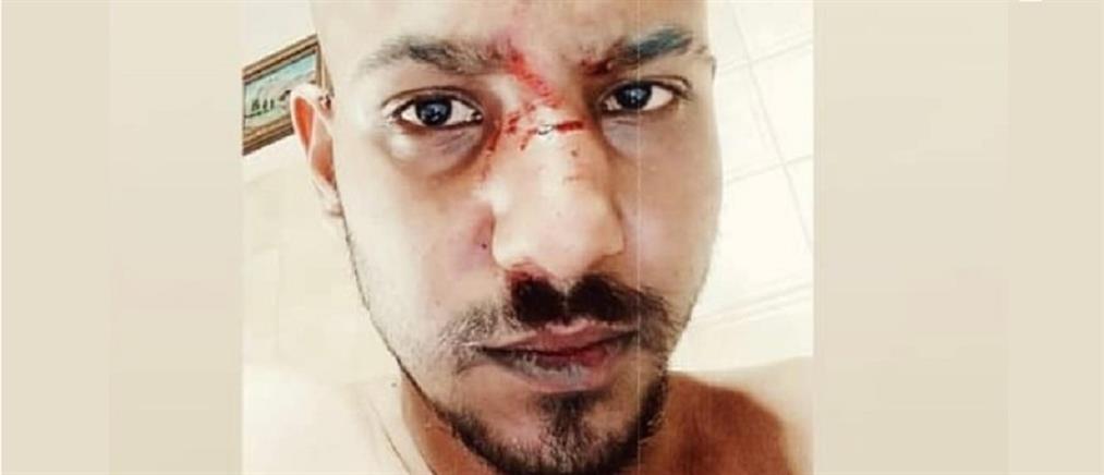 Ναύπακτος: ξυλοκόπησαν νεαρό και τον άφησαν αιμόφυρτο