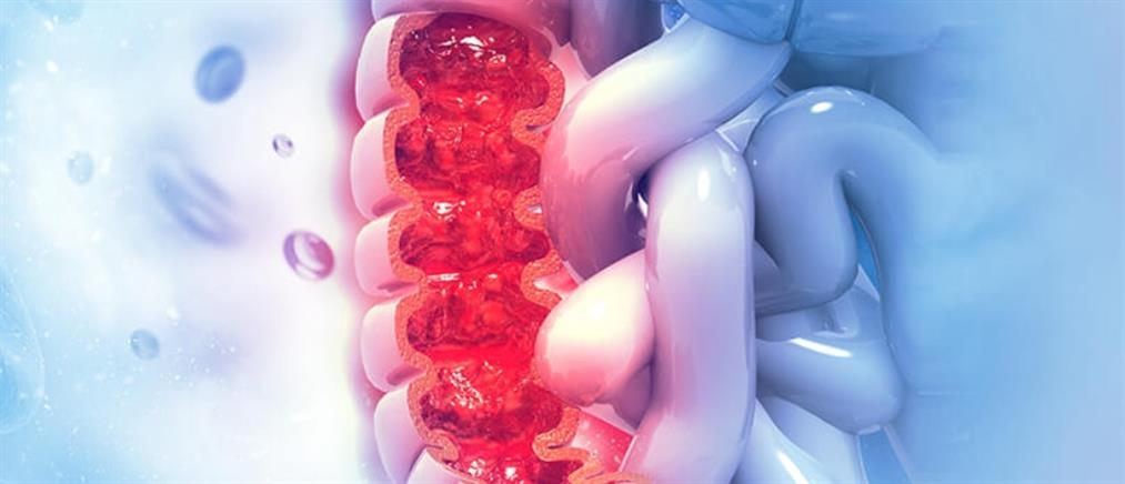 Ορθοκολικός Καρκίνος: συμπτώματα, πρόληψη και θεραπεία