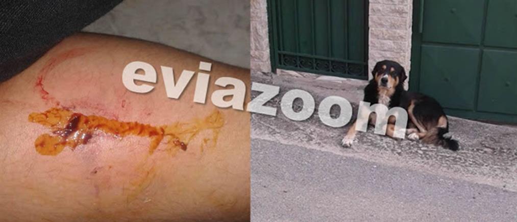 Αδέσποτος σκύλος δάγκωσε παιδί σε μηχανάκι εν κινήσει (εικόνες)