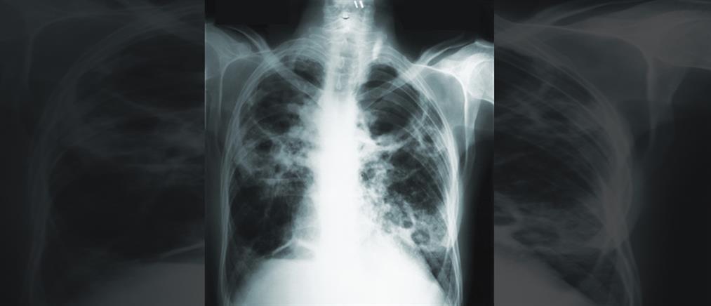 Πνευμονία: Τρόποι μετάδοσης, συμπτώματα, θεραπεία, πρόληψη