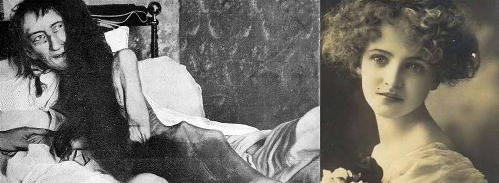 Η τραγική ιστορία μιας κοπέλας που την έκλεισε η μάνα της για 25 χρόνια σε μια σοφίτα (εικόνες)