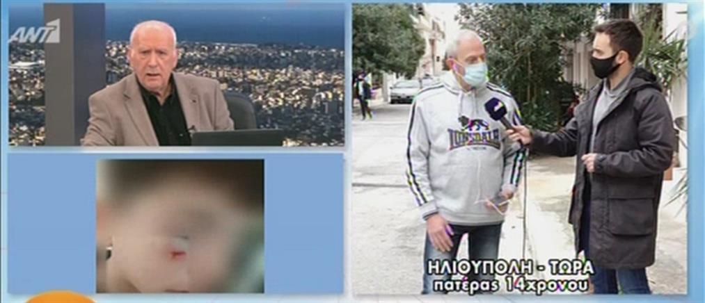 Καταγγελία στον ΑΝΤ1: ξυλοδαρμός παιδιού από συμμαθητή του σε σχολείο (βίντεο)