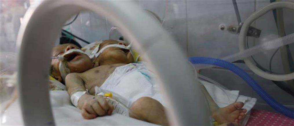 Το εμπάργκο καταδίκασε σε θάνατο τα σιαμαία στην Υεμένη