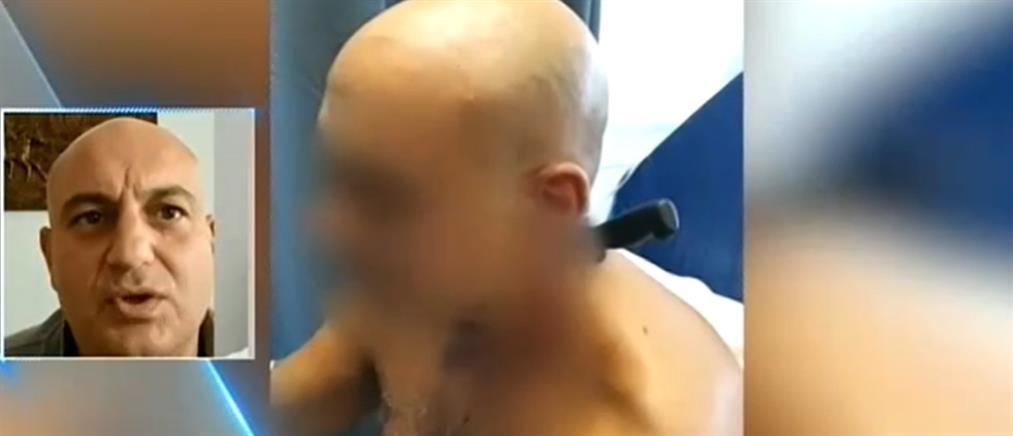 Ο Κωνσταντίνος Φλαούνας στον ΑΝΤ1 για την επίθεση με μαχαίρι στον αυχένα (βίντεο)