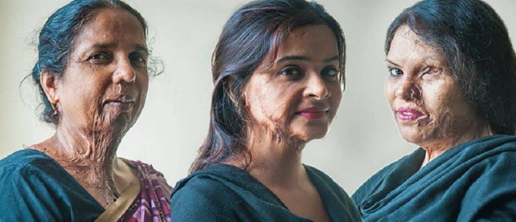 Γυναίκες που δέχθηκαν επίθεση με οξύ συμμετείχαν σε επίδειξη μόδας!