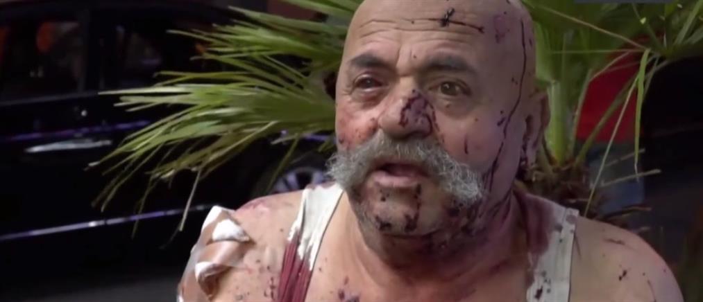 Βηρυτός: Ντοκουμέντα τρόμου και ανθρώπινες ιστορίες που συγκλονίζουν (βίντεο)
