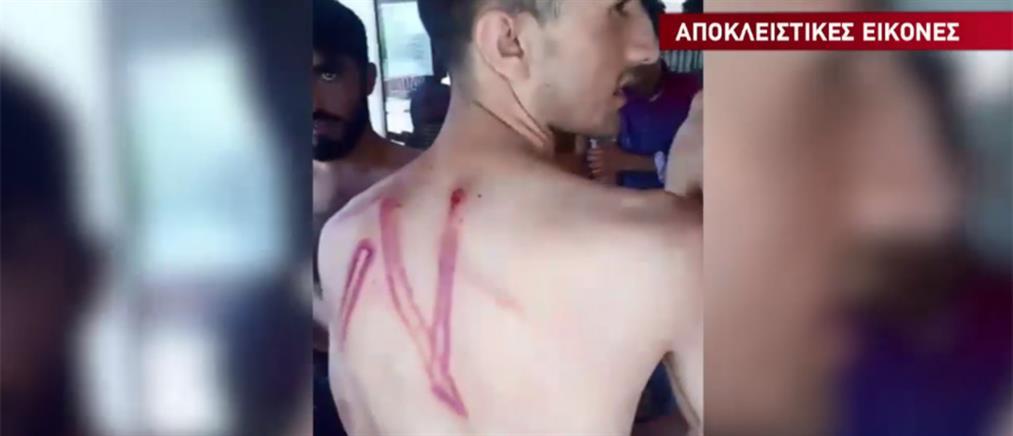 Αποκλειστικό ΑΝΤ1: μετανάστες καταγγέλλουν άγριο ξυλοδαρμό από συνοριοφύλακες (βίντεο)