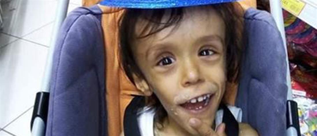 """O """"Μικρός Πρίγκιπας"""" ζητά στήριξη για να πάει στο εξωτερικό ο μικρός Γιώργος"""