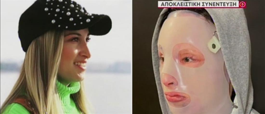 Επίθεση με βιτριόλι: συγκλονίζει η Ιωάννα Παλιοσπύρου στον ΑΝΤ1 (βίντεο)