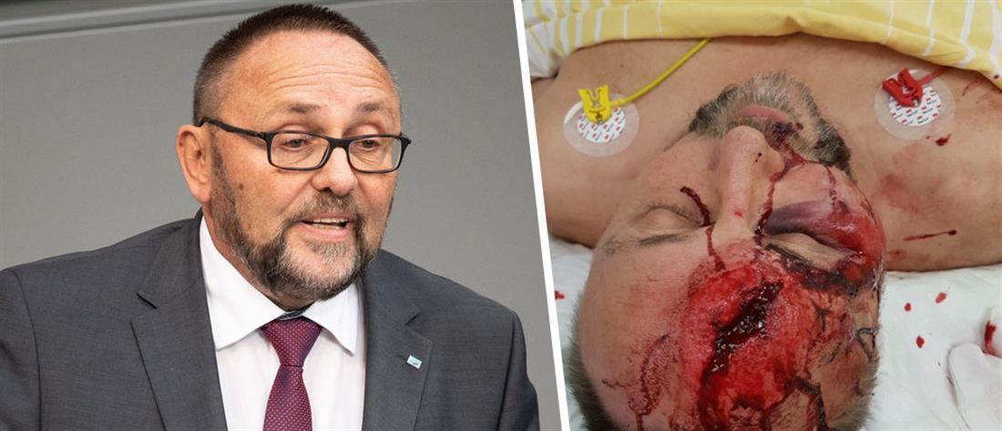 Γερμανία: επίθεση κουκουλοφόρων με ρόπαλα σε βουλευτή της ακροδεξιάς