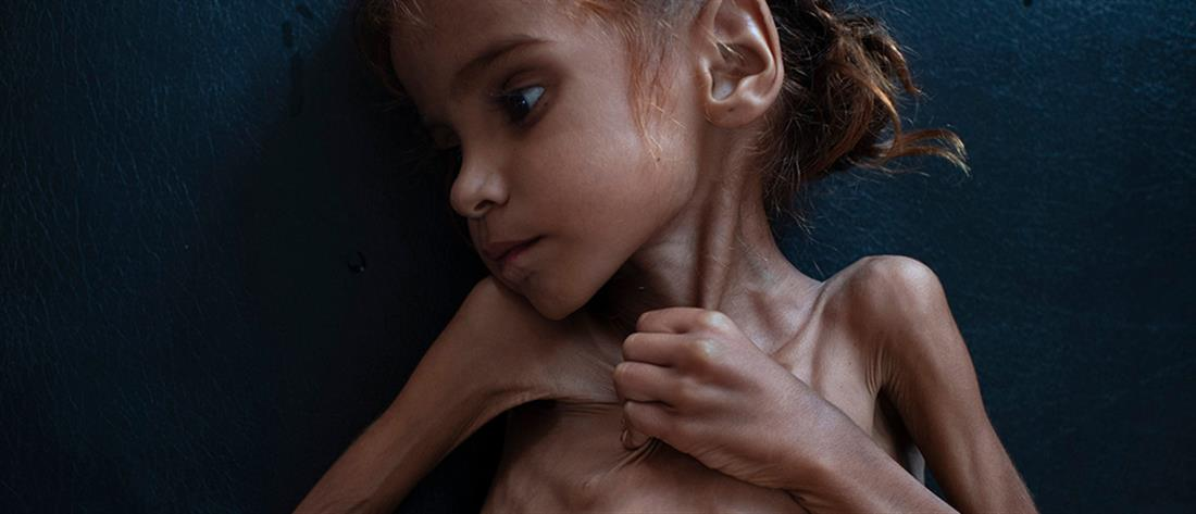 Πέθανε το κοριτσάκι – σύμβολο του λιμού στην Υεμένη