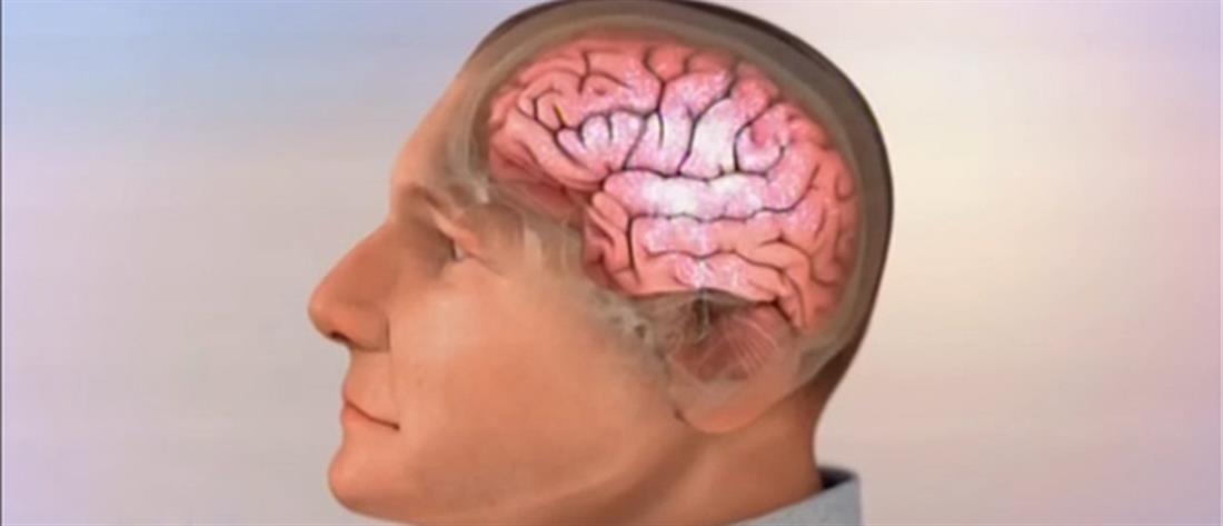 Οι υγιεινές συνήθειες μειώνουν τον κίνδυνο για Αλτσχάιμερ