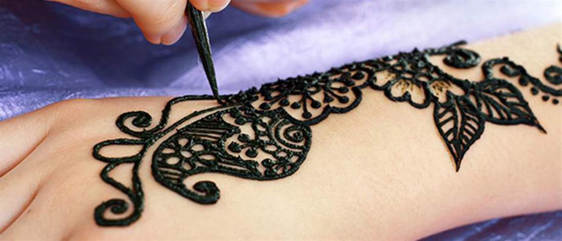 """Σκληρές εικόνες: Παραλίγο να χάσουν τα άκρα τους μετά από μόλυνση από τατουάζ """"χένα"""""""