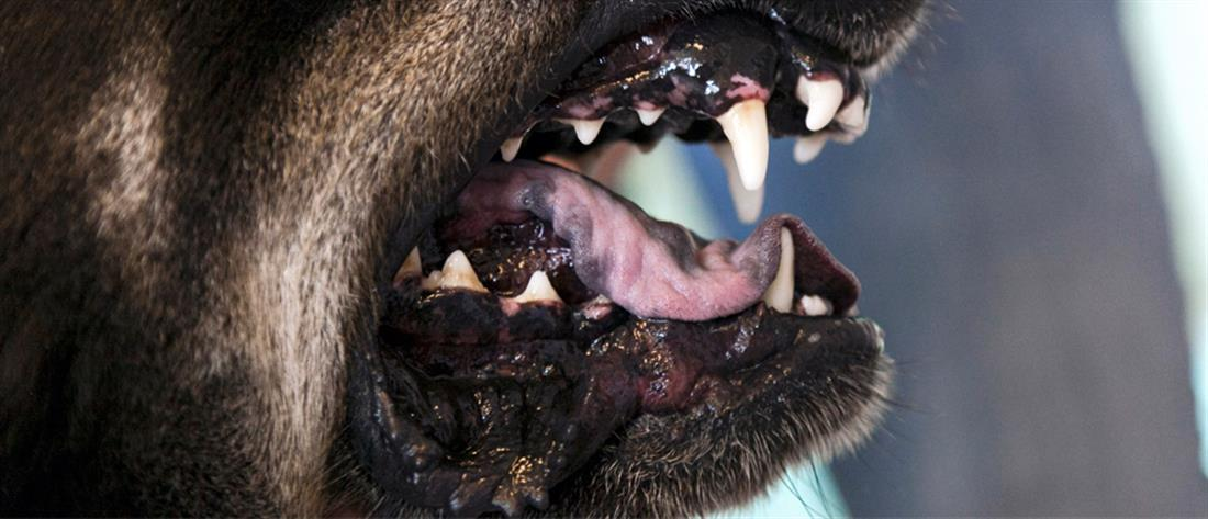 Σε κρίσιμη κατάσταση 9χρονος μετά από επίθεση σκύλων