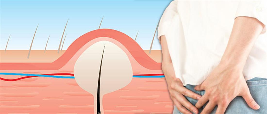 Κύστη κόκκυγος: συμπτώματα και σύγχρονη αντιμετώπιση με laser