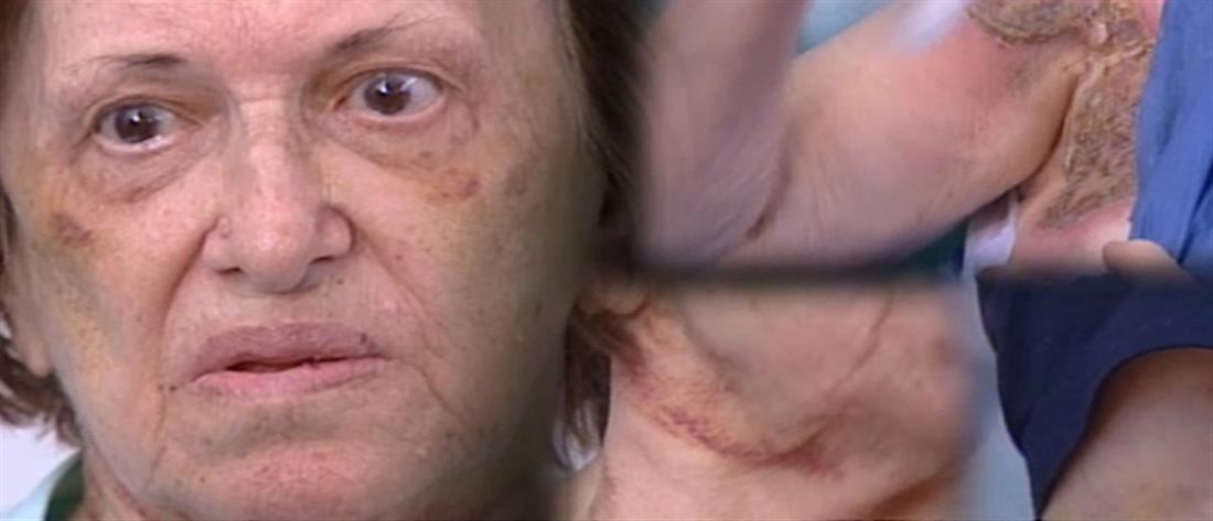 Βαριές ποινές για τους Γεωργιανούς που σιδέρωναν τα θύματά τους