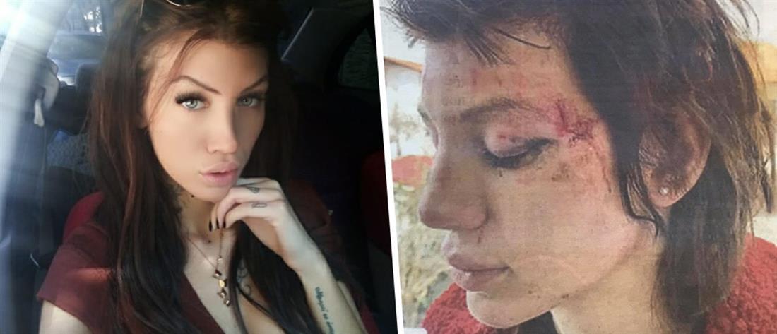 Μαρία Αλεξάνδρου: καταγγελία για απαγωγή και ξυλοδαρμό από έξι γυναίκες (εικόνες)