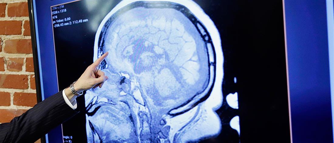 Τρία χρόνια νεότερος ο εγκέφαλος των γυναικών από των ανδρών ίδιας ηλικίας
